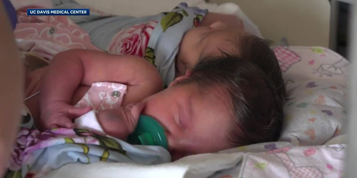 Infant twins joined at head separated after 24-hour surgery