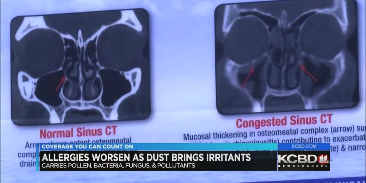 High winds, dust making allergies worse