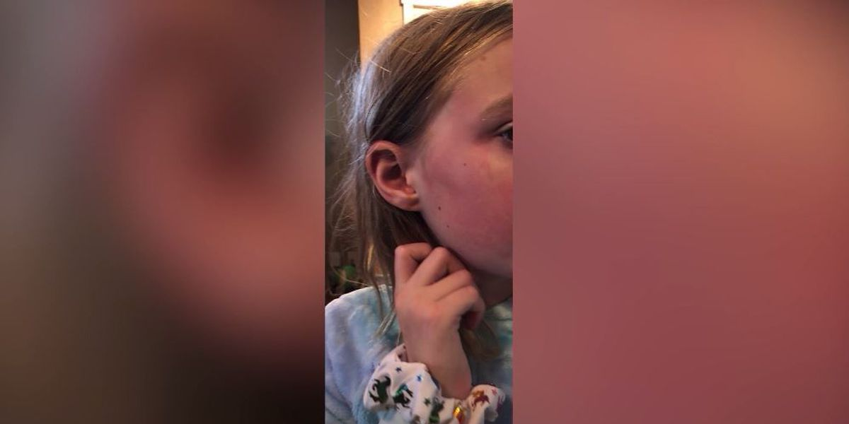 Mom demands recall after Yes To unicorn face mask burns stepdaughter