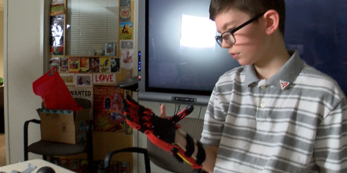 10-year-old boy receives prosthetic hand from Texas Tech