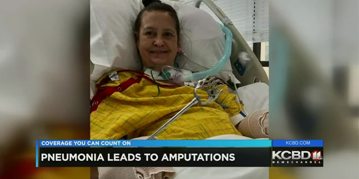 Lubbock woman fighting to recover after losing hands, legs to pneumonia