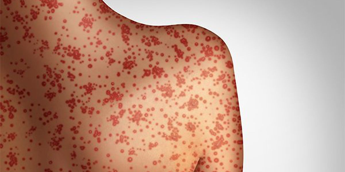 Woman with measles potentially exposed 'Avengers: Endgame' opening night audience in California